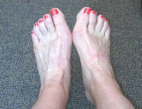Cold_toes